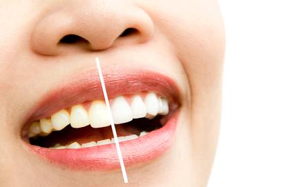 A fehér fogak titka